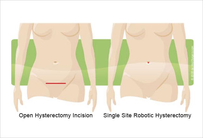 single site robotic hysterectomy incision versus traditional procedure